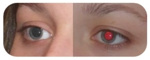 yeux_rouge